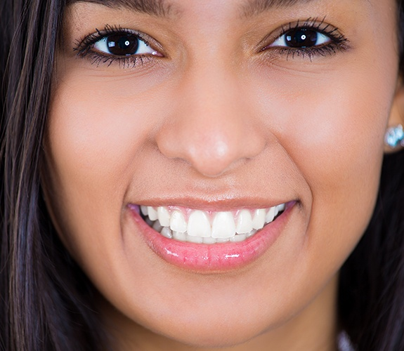 Young woman's flawless smile after teeth whitening treatment