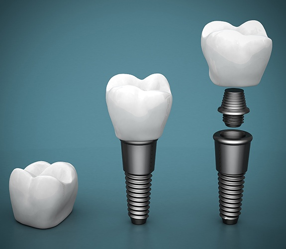 Animated components of dental implant supported replacement tooth