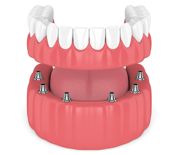 Aniamted dental implant supported denture placement